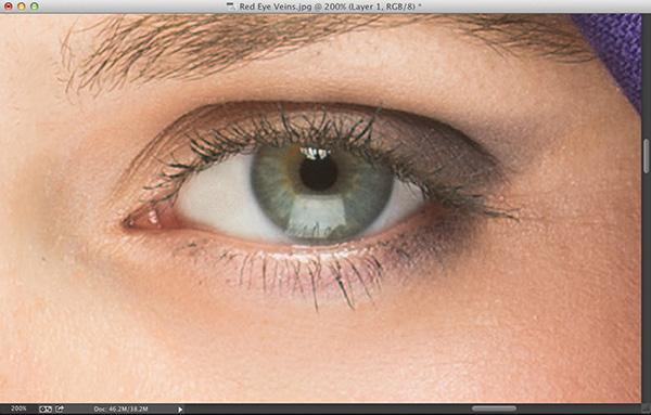 Removing Eye Veins